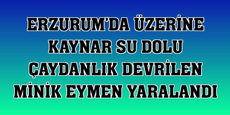 Erzurum'da üzerine kaynar su dolu çaydanlık devrilen minik Eymen yaralandı