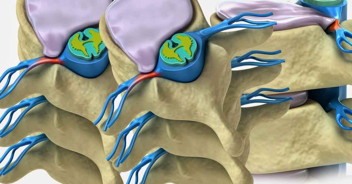 Nükleoplasti Nedir? Sorularla Nükleoplasti ve Tedavisi