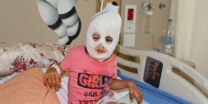Sıcak suyla oynarken yanan minik Ayfer, Erzurum'da tedaviye alındı