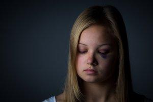 Göz Altı Morluklarına 3 Önemli Ve Etkili Tedavi Yöntemi
