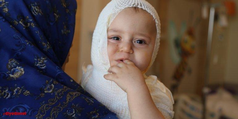 Erzincan'da üzerine kaynar süt dökülen minik Yusuf Erzurum'da tedaviye alındı