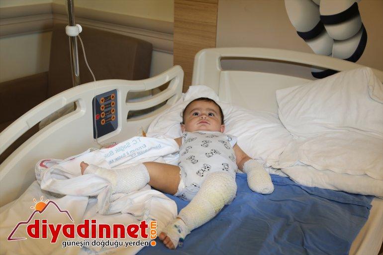 bebek yaralandı dolu - ERZURUM devrilen çaydanlık Ağrı'da kaynar su üzerine 1